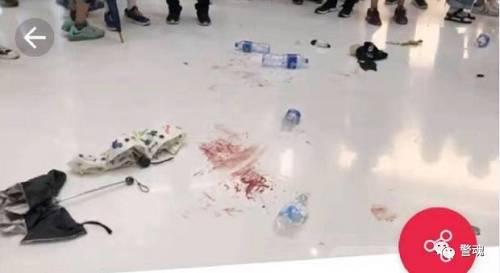 特区政府警务处处长卢伟聪15日凌晨到医院探望受伤警察后介绍,至少10名警察受伤,包括被暴力示威者以硬物击伤、以高空掷物砸伤等,有警察面部及眼部骨裂,更有一人右手无名指被暴徒咬断。