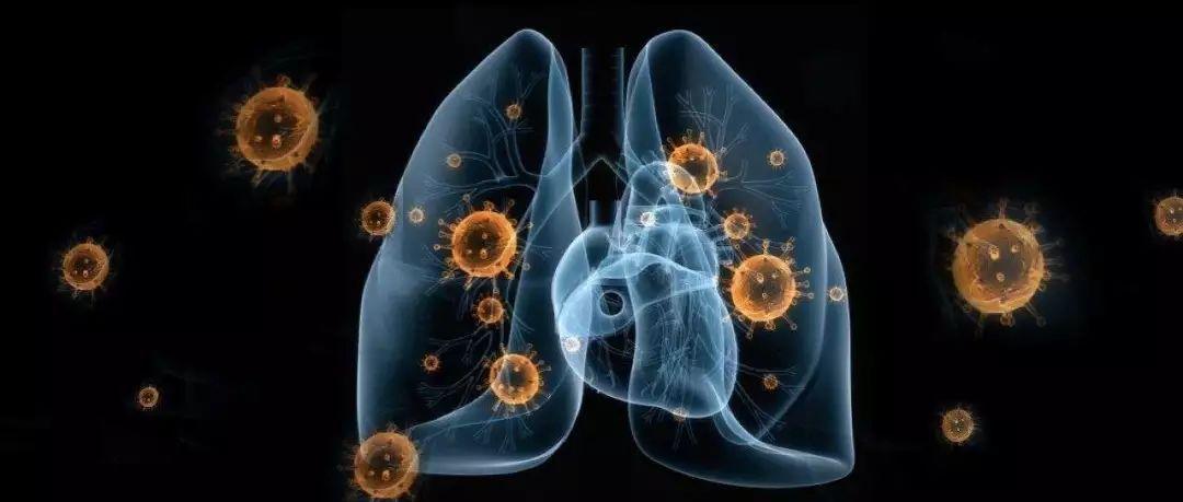 哪些城市的新型肺炎疫情可能被低估