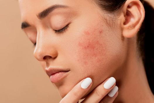 """半数国人自认""""敏感肌"""",护肤品牌如何从成分突围?"""